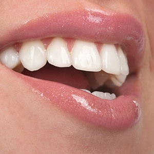 cimarron family dentistry offers porcelain veneers in hurst to help you smile like a celeb!